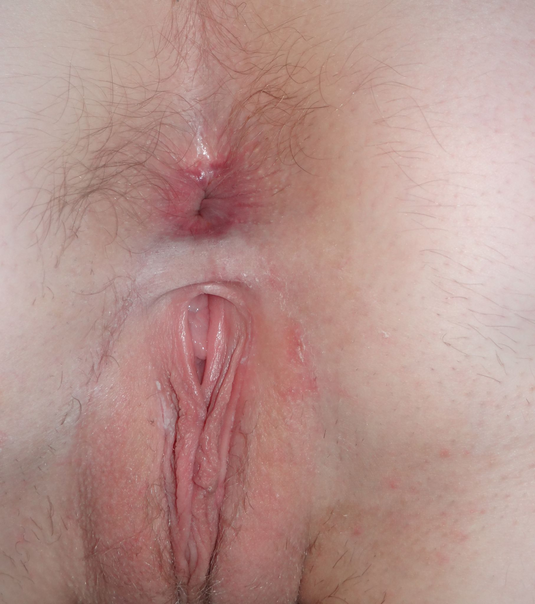 Teen girls body naked close up — img 15
